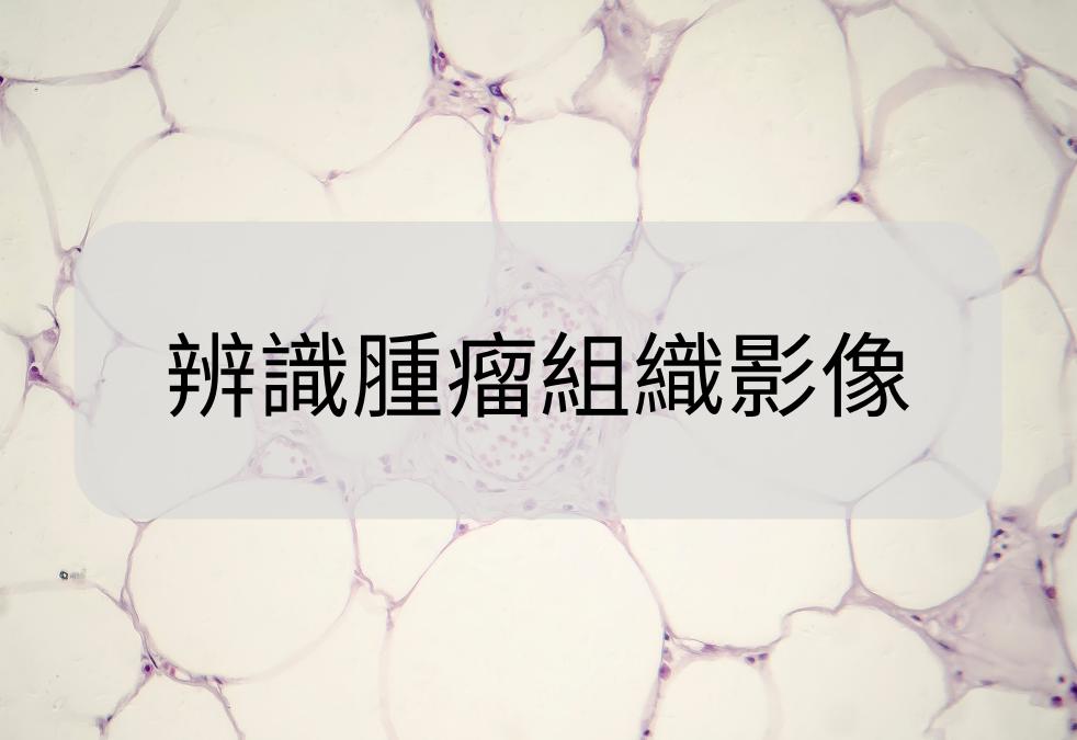 辨識腫瘤組織影像